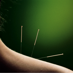 acupuncture in Lake Mary